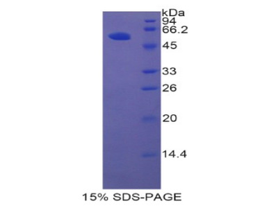 Recombinant Hepatocyte Growth Factor Activator (HGFAC)