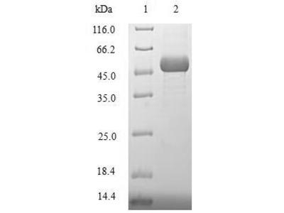 Recombinant Human DNA repair protein XRCC3 (XRCC3)