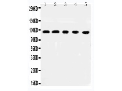 Anti-MCC antibody