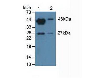 Polyclonal Antibody to Aromatase (ARO)