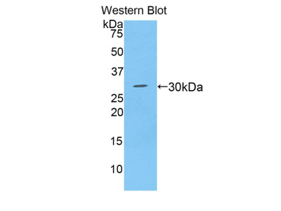 Polyclonal Antibody to A Disintegrin And Metalloprotease 28 (ADAM28)
