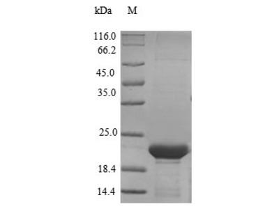 Recombinant Mouse Epididymal-specific lipocalin-5 (Lcn5)