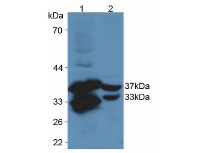Polyclonal Antibody to Cysteine Rich Protein, Angiogenic Inducer 61 (CYR61)