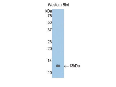 Polyclonal Antibody to Tropomodulin 1 (TMOD1)