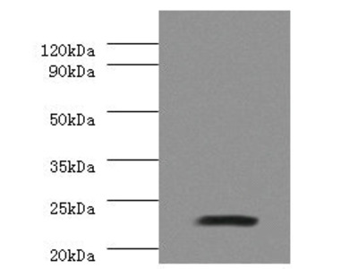 Rabbit anti-human Junctional adhesion molecule B polyclonal Antibody