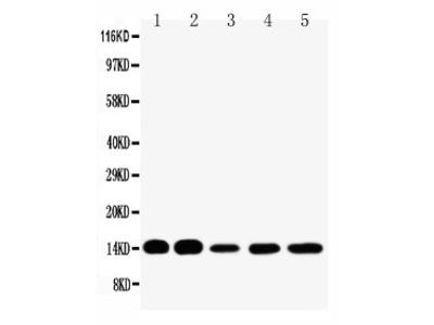 Anti-liver FABP antibody