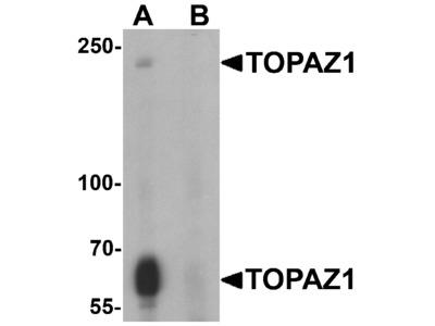 TOPAZ1 Antibody