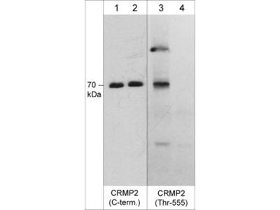 CRMP2 (Thr-555), phospho-specific