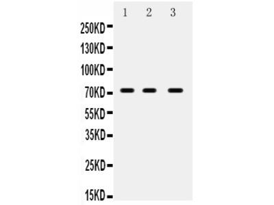 Anti-ABCG5 Picoband Antibody