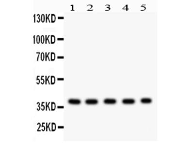 Anti-SLUG/SNAI2 Picoband Antibody