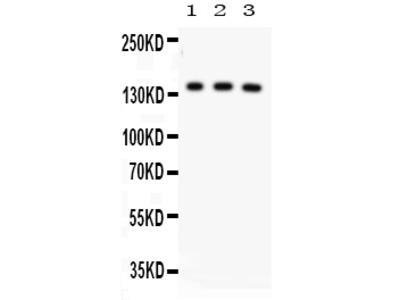 Anti-ABCB11/Bsep Picoband Antibody