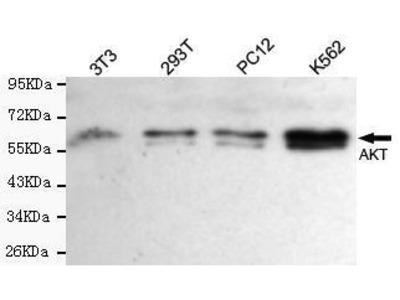 Mouse Anti-AKT Antibody
