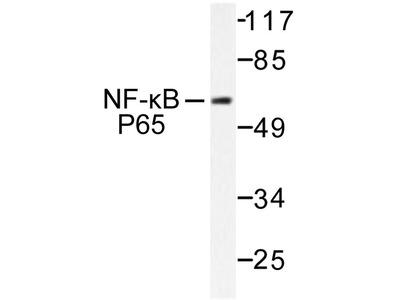 Rabbit Anti-NFkB-p65 Antibody