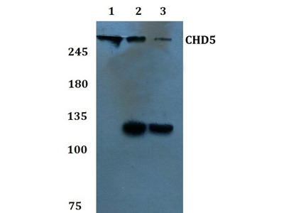 Rabbit Anti-CHD5 Antibody