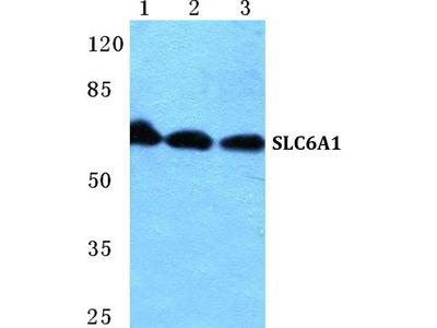 Rabbit Anti-SLC6A1 Antibody