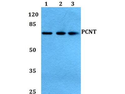 Rabbit Anti-PCNT Antibody