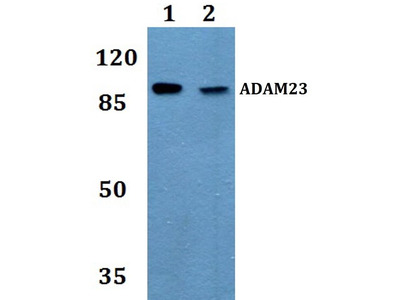 Rabbit Anti-ADAM23 Antibody