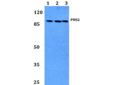 Rabbit Anti-PMS2 Antibody