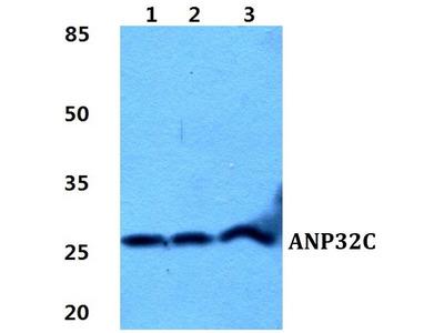 Rabbit Anti-ANP32C Antibody