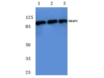 Rabbit Anti-ERAP1 Antibody