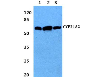 Rabbit Anti-CYP21A2 Antibody