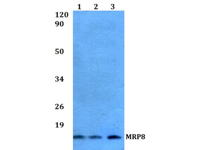 Rabbit Anti-MRP8 Antibody