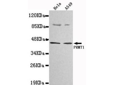 Mouse Anti-PRMT1 Antibody