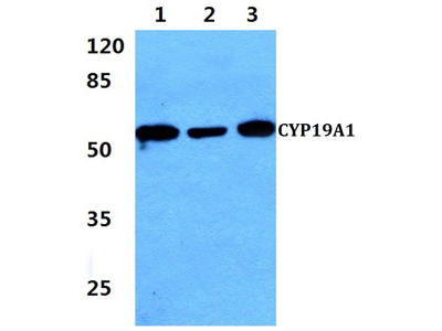 Rabbit Anti-CYP19A1 Antibody