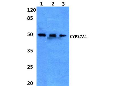 Rabbit Anti-CYP27A1 Antibody