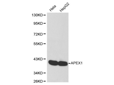 Rabbit Anti-LTA4H Antibody