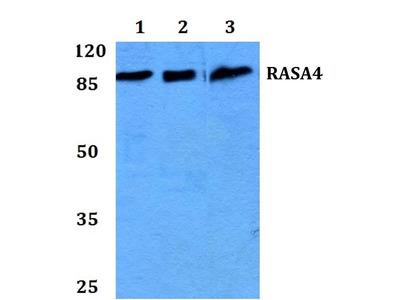 Rabbit Anti-RASA4 Antibody