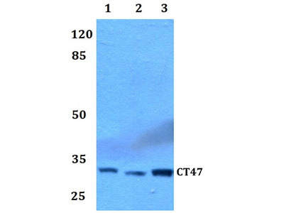 Rabbit Anti-CT47 Antibody