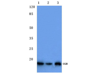 Rabbit Anti-CGB Antibody