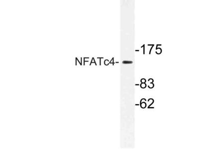 Rabbit Anti-NFATc4 Antibody