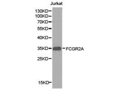 Rabbit Anti-CD32-A Antibody
