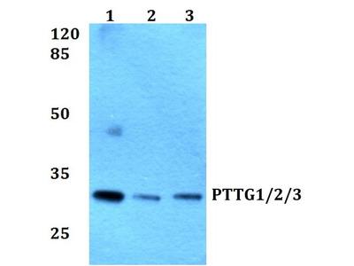 Rabbit Anti-PTTG 1/2/3 Antibody