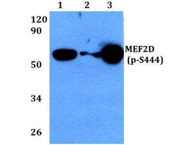 Rabbit Anti-MEF2D, phosphorylated Antibody