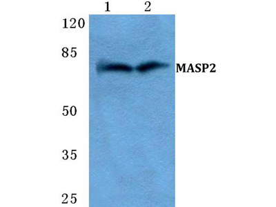 Rabbit Anti-MASP2 Antibody