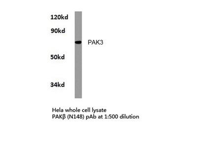 Rabbit Anti-PAK3 Antibody