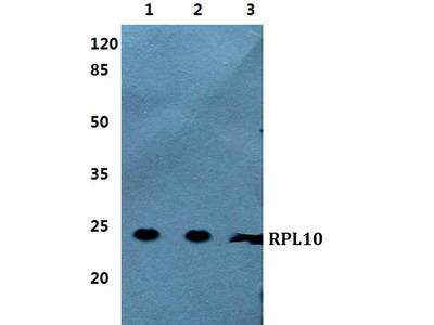 Rabbit Anti-RPL10 Antibody