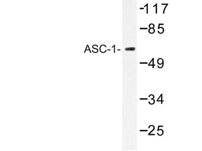 Rabbit Anti-ASC-1 Antibody