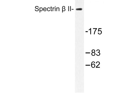 Rabbit Anti-Spectrin beta Antibody