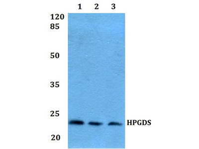 Rabbit Anti-PGD synthase Antibody