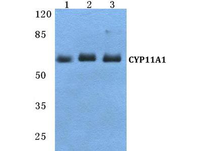 Rabbit Anti-CYP11A1 Antibody