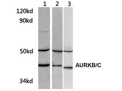 Rabbit Anti-AURKB/C Antibody