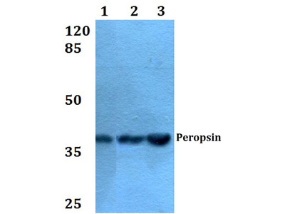 Rabbit Anti-Peropsin Antibody