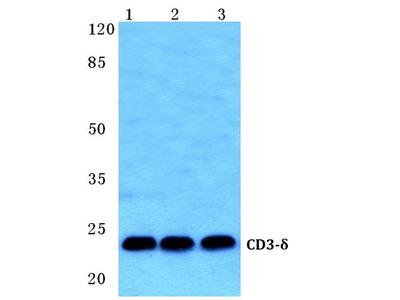 Rabbit Anti-CD3 delta Antibody