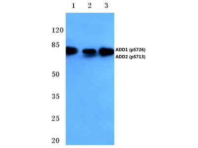 Rabbit Anti-Adducin alpha/beta, phosphorylated Antibody