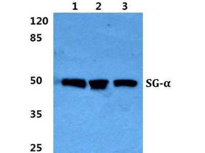 Rabbit Anti-Sarcoglycan-alpha Antibody