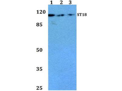 Rabbit Anti-ST18 Antibody